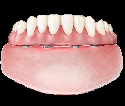 prix bridge complet sur implants dentier