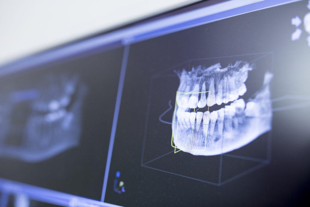 prise empreinte invisalign clinique implantologie chirurgie orale A&M Groupe