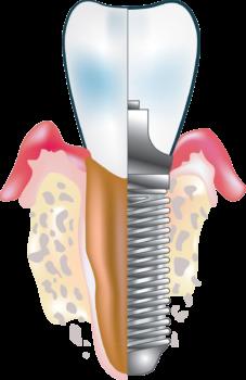 prix greffe osseuse clinique implantologie et chirurgie orale A&M Groupe