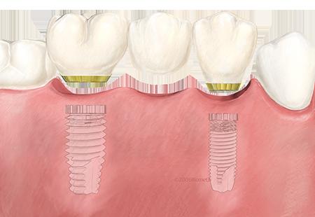 prix des implants dentaires clinique implantologie et chirurgie orale A&M Groupe